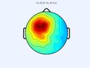 EEG topographic map