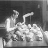Peruvian Trepanned Skulls
